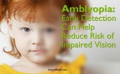 """Amblyopia is a neuro-developmental disorder of the visual cortex that arises from abnormal visual experience early in life. It is commonly described as a type of """"lazy eye,"""" when one eye isn't able..."""
