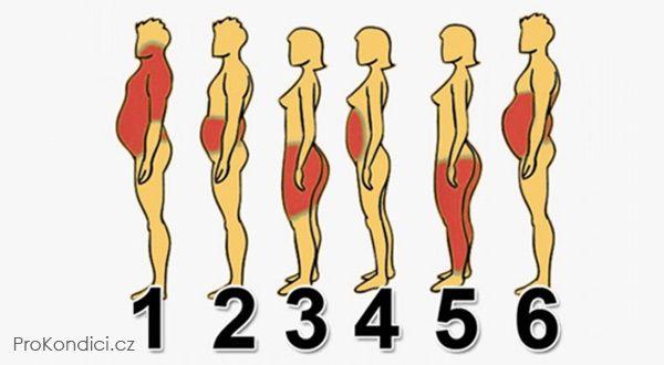 6 typů obezity a jak se zbavit každého z nich | ProKondici.cz