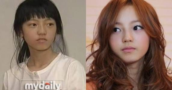 Singer Goo Hara Plastic Surgery Before and After Photo Showing Filler Injection on Nose