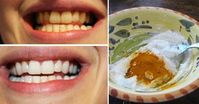 Creative Ideas – How To Whiten Your Teeth Using Turmeric