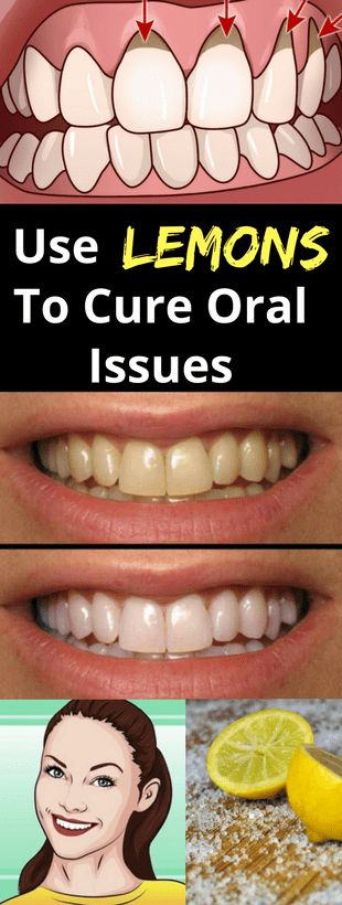 Use Lemons To Cure Oral Issues -