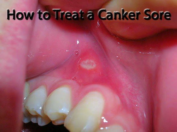 How to Treat Mouth Sores
