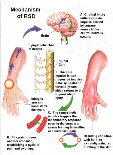 Crps Diagrams Depict Different Areas Of The Body Because