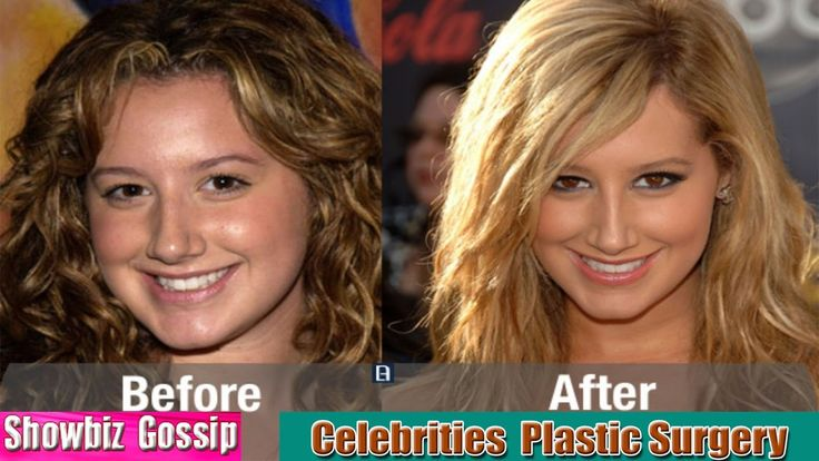 Top 07 Most Famous Celebrities Who Had Plastic Surgery