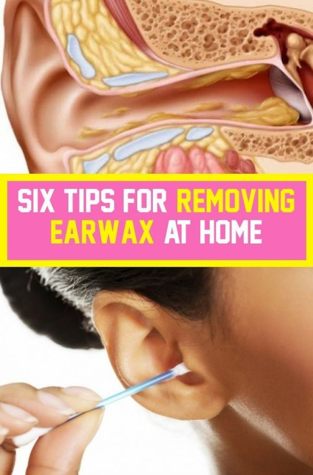 Pin By Goce On Classic Medicine In 2020 Ear Wax Ear Wax Removal