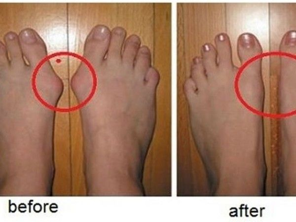 "Bunions are actually salt deposits. Their formation is triggered by influenza, tonsillitis, gout, poor metabolism, improper nutrition, rheumatic infection and wearing uncomfortable shoes. Bunions on the feet are ""a nightmare"" for people: it is very difficult to find the appropriate footwear, they are irritating and hurtful; moreover – they give a very ugly appearance to […]"