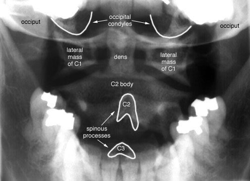 Radiographic Anatomy of the Skeleton: Cervical Spine -- Open Mouth (Dens) View, Labelled