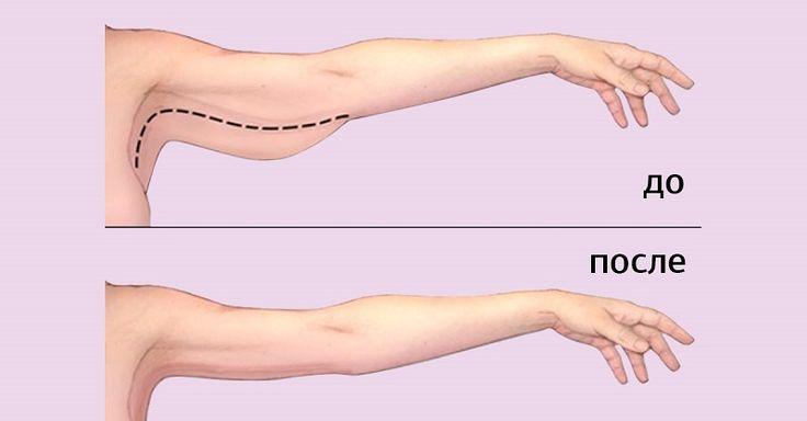 С жировыми отложениями на руках с возрастом сталкиваются и женщины, и мужчины. Проблема, как правило, дает о себе знать после 30 лет, когда из-за...