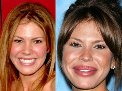Nikki Cox lip augmentation and brow lift before and after.  She looks like a puppet - or a baboon.
