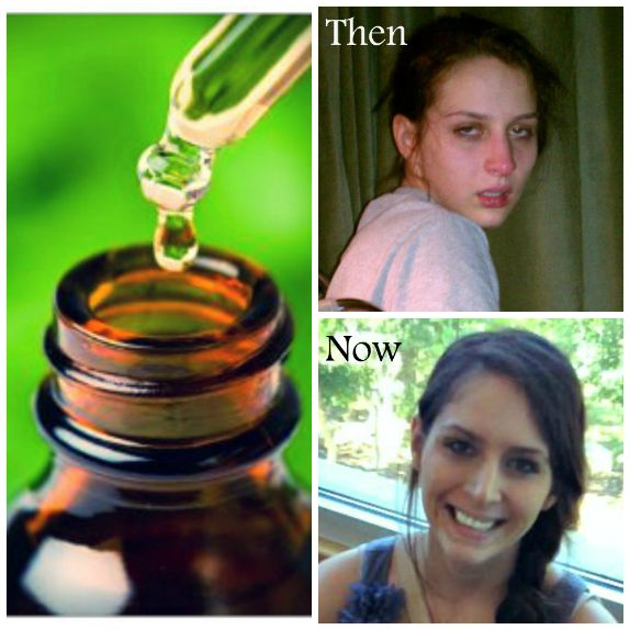 Amazing Results: The Healing Power of Cannabis Oil On Lyme Disease and Lyme Co-infections | Collective-Evolution