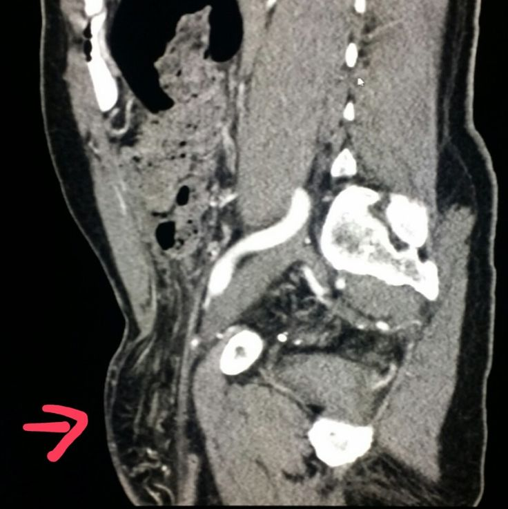 #Abdomen #CT shows a #hernia (#inguinal) in a #patient with #belly pain. #radiologist #radiology #pain