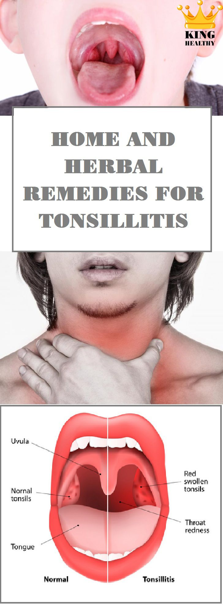 Home And Herbal Remedies For Tonsillitis - King Healthy Life