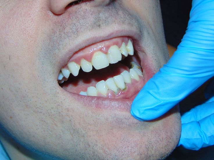 detartraj 06   dentist-who