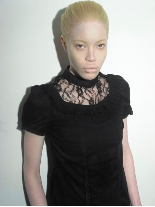Albino African American Supermodel Diandra Forrest! Love the top! :p
