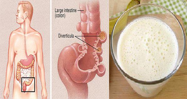 Když naše tělo zpracovává jídlo, které jíme, někdy se nahromadí zbytky jídla a slupek z ovoce na stěnu tlustého střeva.