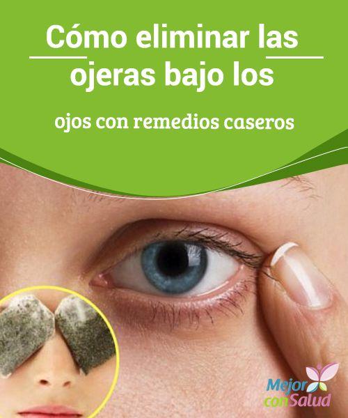Cómo eliminar las ojeras bajo los ojos con remedios caseros   Te compartimos varios remedios caseros para minimizar el aspecto de esas antiestéticas ojeras que se forman bajo tus ojos. ¡Pruébalos!