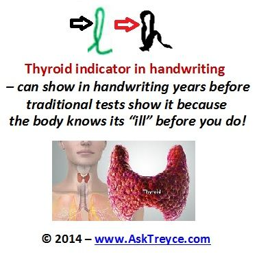 Shaky letters can mean an issue with the thyroid. - LMP