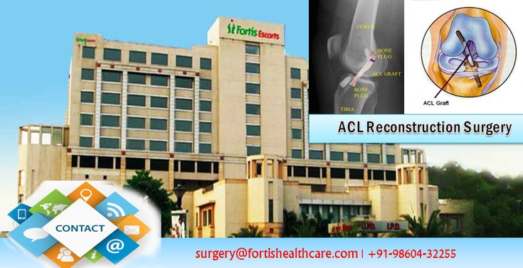 #ACL #Reconstruction #Surgery At Fortis Hospital Helps You To Take The Steps You've Been Dreaming Of.