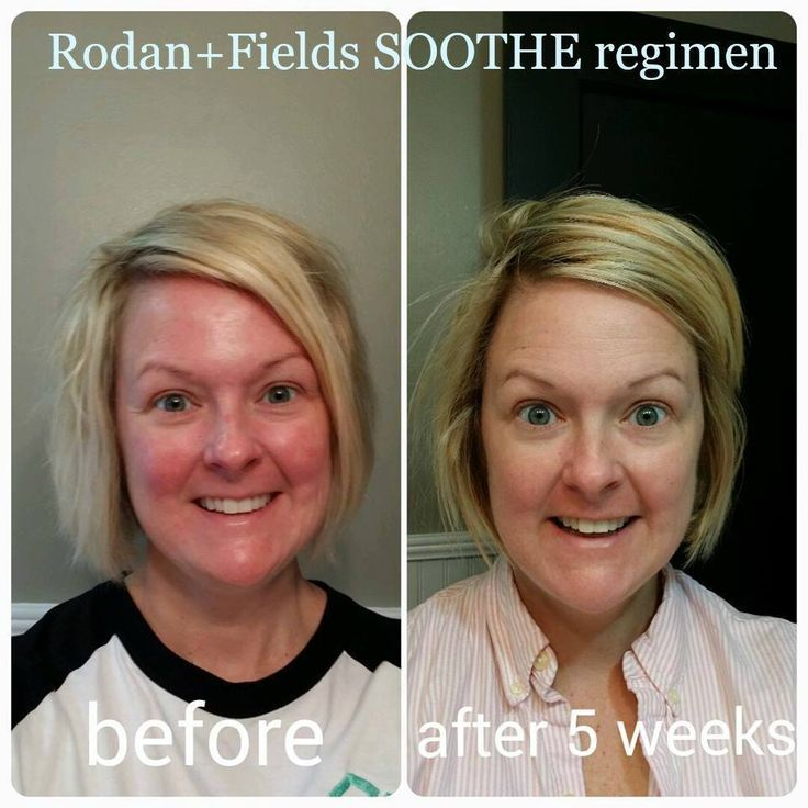 Redness gone with Rodan + Fields Soothe Regimen