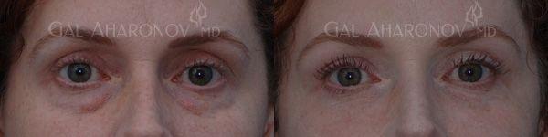 Juviderm under eye dark circles treatment under eye hollowness treatment $500