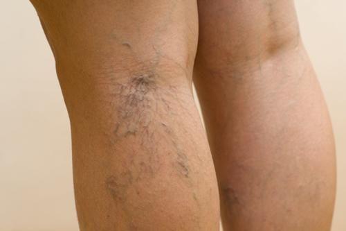 Tratamiento para eliminar las varices de una vez y para siempre | Cuidar de tu belleza es facilisimo.com