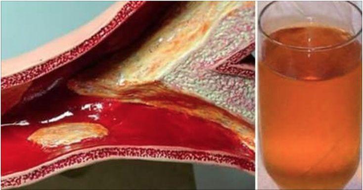 Esta receita vai eliminar toxinas do sangue, aumentar a elasticidade dos vasos sanguíneos e eliminar depósitos de colesterol.Ou seja, ela vai fazer uma profunda limpeza em suas artérias.