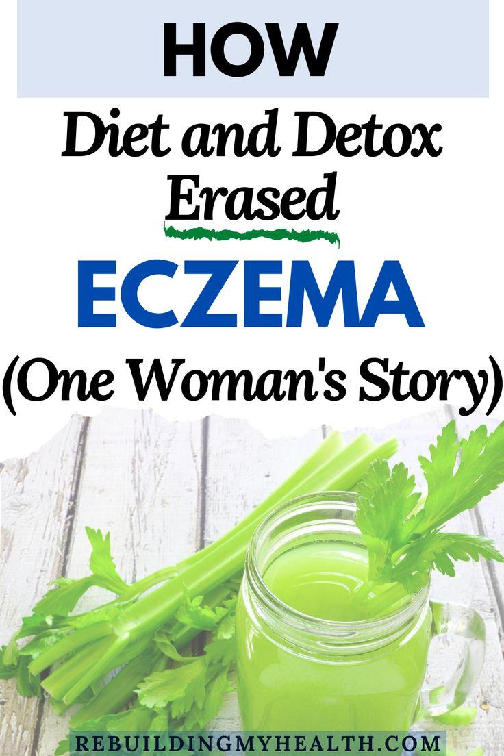 Detox plus diet erases eczema for british woman