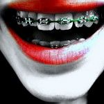 colors braces for teeth, braces for girls. purple braces for teeth, green braces for teeth, teeth braces 2014