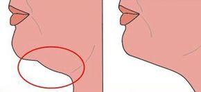 La procédure commune pour perdre le double menton est la liposuccion. Celle-ci vise à redessiner la ligne du menton et de la mâchoire inférieure. Cependant, l'une des complications de cette opération est une cicatrice en forme de râteau que l'on peut remarquer particulièrement lorsque la personne penche la tête en arrière. Aussi, avant de mettre …
