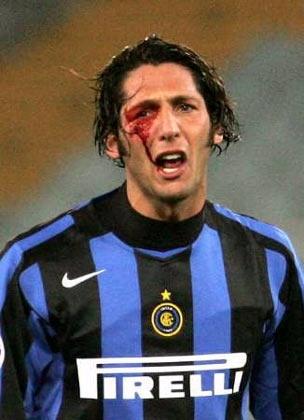 Marco Materazzi.. La única manera para poder detener a esta maquina del football... Rompiéndole la cara..