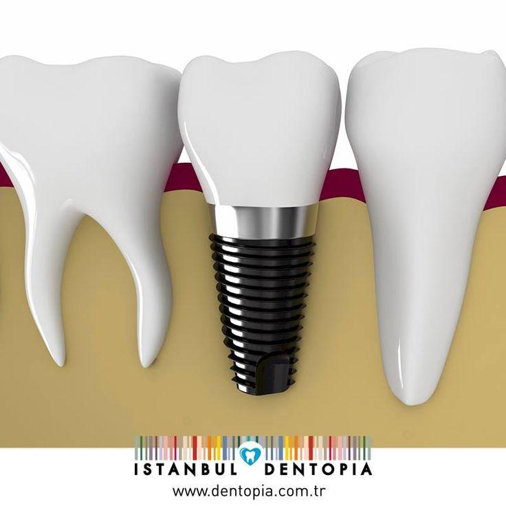 İmplant tedavisi sonrasında doğal dişinizmiş gibi ağız bakımını gerçekleştirip, düzenli olarak diş hekimi kontrolüne giderseniz implantınızı ömür boyu kullanabilirsiniz. #implant www.dentopia.com.tr