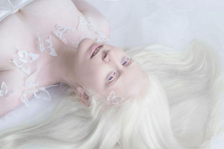 fotografias-de-pessoas-albinas-por-yulia-taits-zohar
