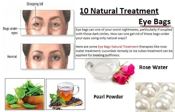 10 Natural Treatment Eye Bags and Look 10 Years Younger