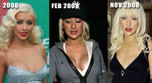 Christina Aguilera Breast Augmentation Before and After | http://plasticsurgeryfact.com/christina-aguilera-plastic-surgery-before-and-after-photos/