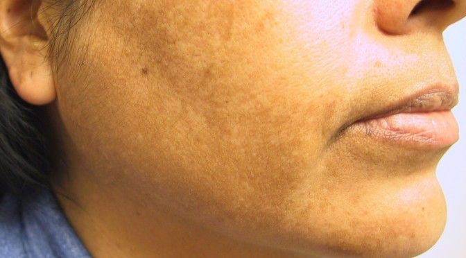 Brown Patches On Skin how to get rid of hyperpigmentation here http://meladermpigmentreducingcomplex.org/