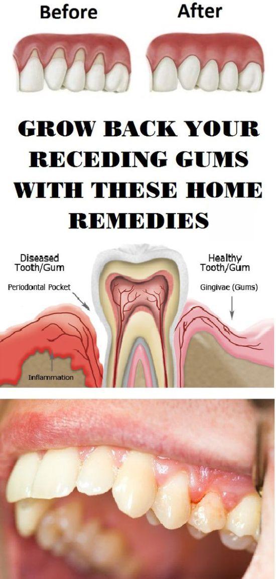 Home Remedies for Gum Disease..