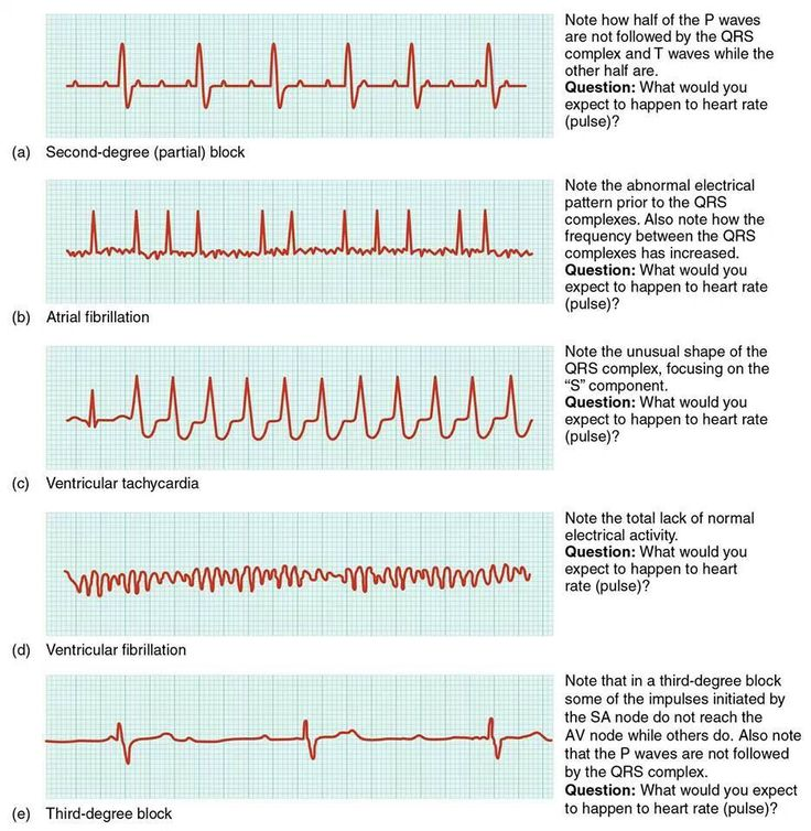 EKG. Who's naturally good at em? No one. It's learned and practiced. Study what you're weak in.