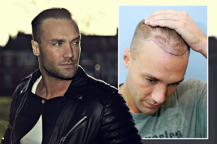 Celebrity Hair Transplant Transformations! Why shaved head ...