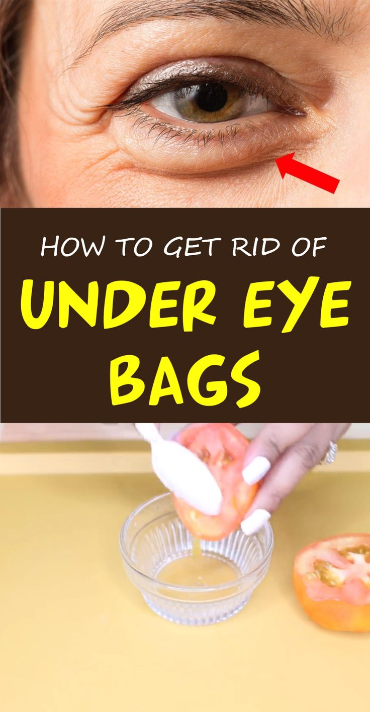 How to get rid of under eye bags 9 proven home remedies