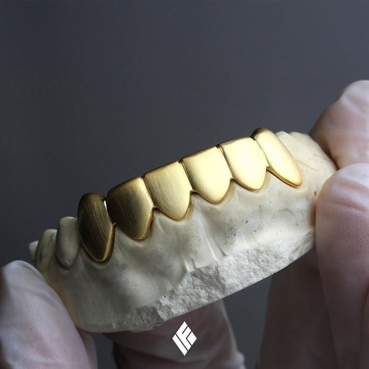 14K Yellow Gold Satin-finished Solid Gold Bottom 6 teeth grill for @r0nbomb  #Grillz #CustomJewelry #IFANDCO