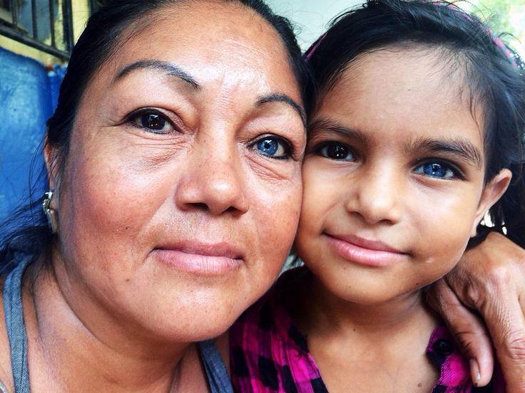 Una madre y su hija, con un ojo de cada color.