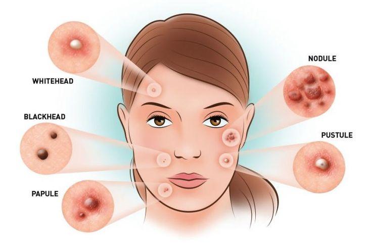 Fabriquez un gel magique anti acné