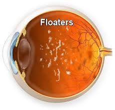 eye floaters cure