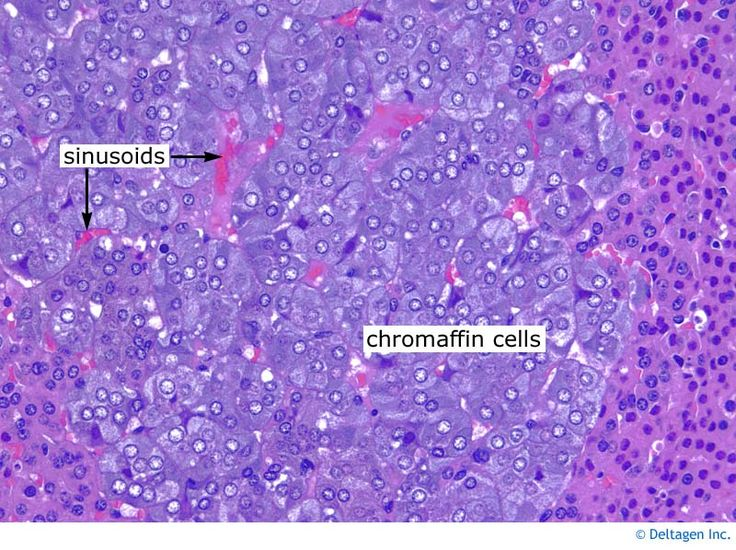 Adrenal medulla is normally chromo, synapto, NF, S100 (sustentacular cells)+ and CK, vimentin-