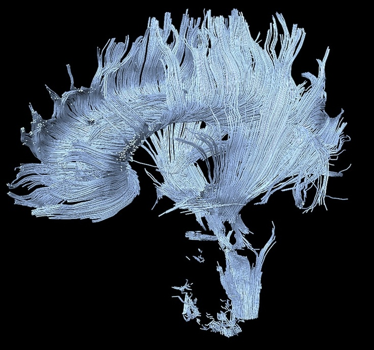 Henning U. Voss and Nicholas D. Schiff. Above: Diffusion MRI image of a patient who has suffered a stroke in the thalamus. This has resulted in major disruptions to certain axon tracts, some of which are visible at the bottom of the figure.