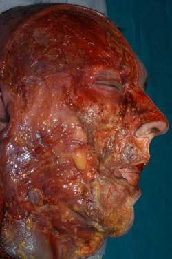 Human Cadaver Dissection Course
