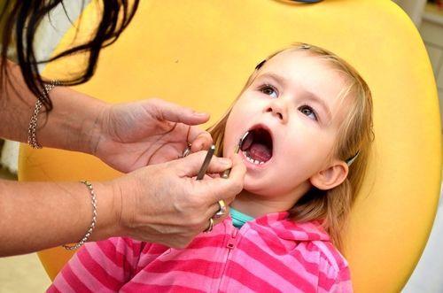Próchnica zębów mlecznych, co to takiego?