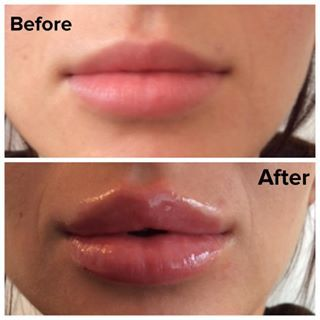 17 Best Images About Enhancement Before And After On