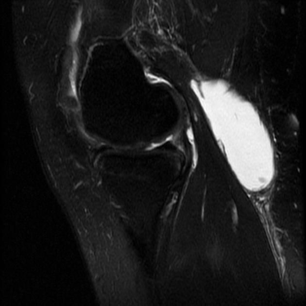What is a Baker's cyst (popliteal cyst)?