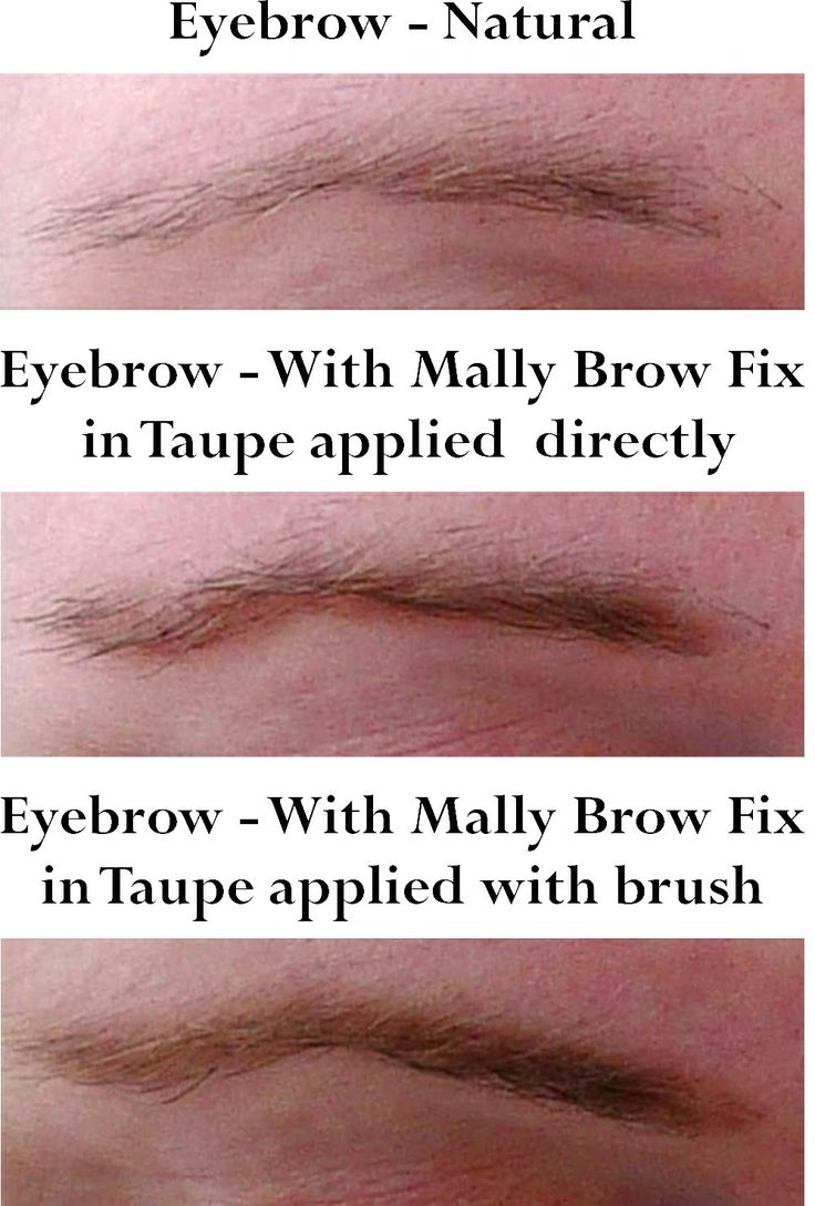 Application of Mally Bow Fix